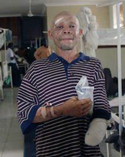 A light-skinned African man with scars on his face with a blue and white striped T-shirt with his left hand missing and the stump covered in bandages, in a hospital in Tanzania