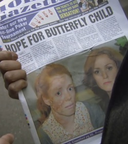 "Newspaper showing a girl with EB and her mother, with the strapline ""Hope for Butterfly Child"""
