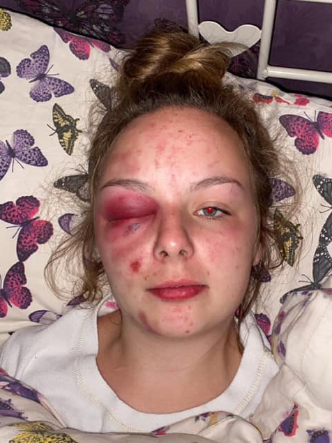Picture of Ellie Williams, a young white women with injuries to her face and right eyelid, lying on a bed with her head resting on a pillow with a butterfly motif.